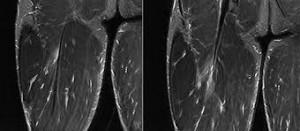 clasificación lesiones musculares con imagen