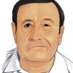 clasificación parálisis facial