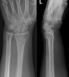 Collesfracture