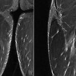 Rotura-fibrilar-biceps-grado-IRM_thumb