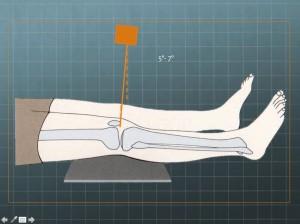 Proyección AP rodilla