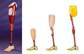 Protesis amputado