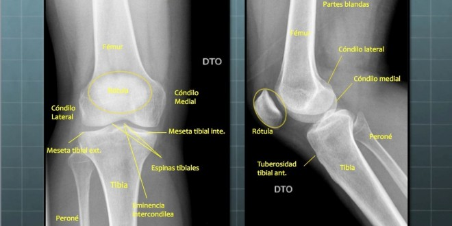 Radiografía Anteroposterior Y Lateral Rodilla Blog De