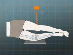 radiografía lateral rodilla
