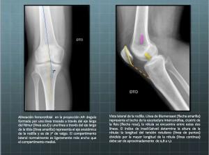 Alineación de la rodilla