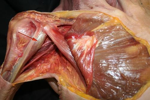 acción e inervación coracobraquial – Blog de Fisioterapia