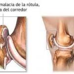 condropatia, condromalacia rotuliana