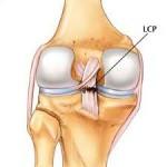 ligamento cruzado posterior de la rodilla