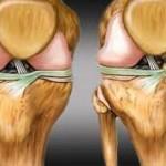 artrosis y sus factores